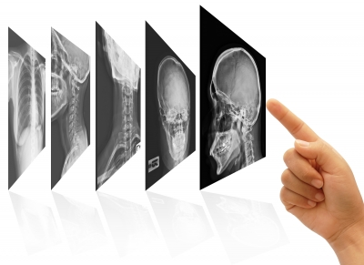Meaningful Use for Radiology