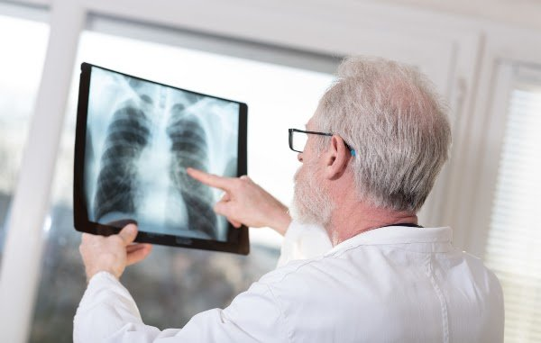 doctor-looking-at-lung-xray