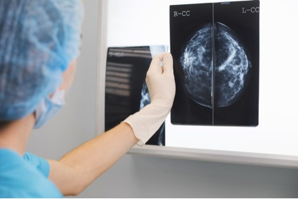 mammography.jpg